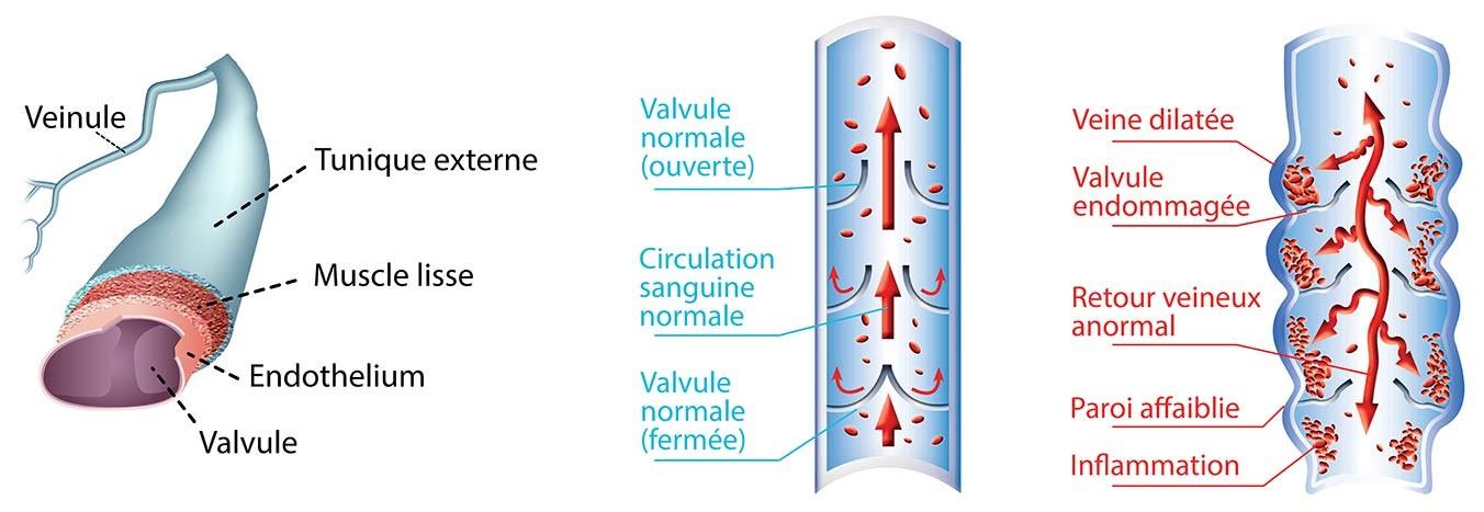 Anatomie d'une veine (à gauche), veine saine (au milieu) et veine endommagée (à droite)
